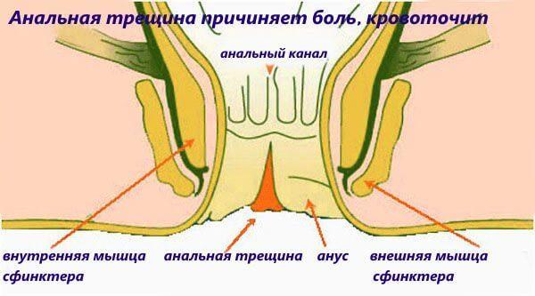 Как лечить трещины заднего прохода