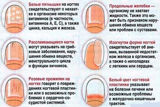 О чем говорят ваши ногти