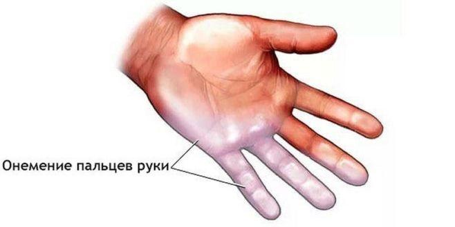 Что делать при онемении рук