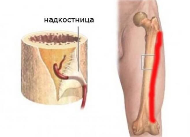 Что такое воспаление надкостницы голени