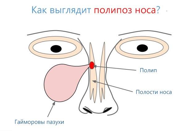 Почему возникают полипы в носу