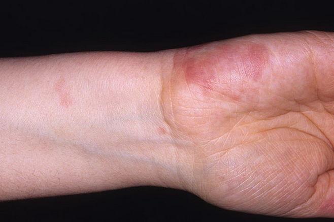 Что такое васкулит